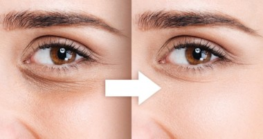 Naturally Remove Dark Circles with FS in Photoshop