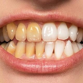 The BEST Way to Whiten Teeth in Photoshop